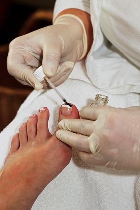Nagelpilzerkrankung behandeln